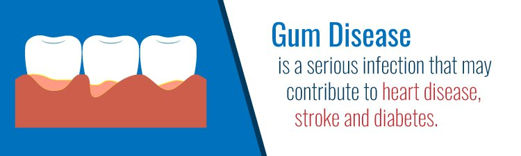 prevent gum disease