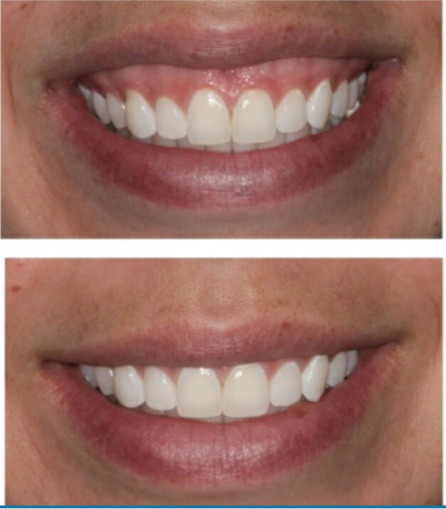 before and after botox for gummy smile