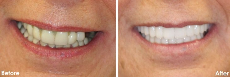 Before & After Photo of dental bridge with crown