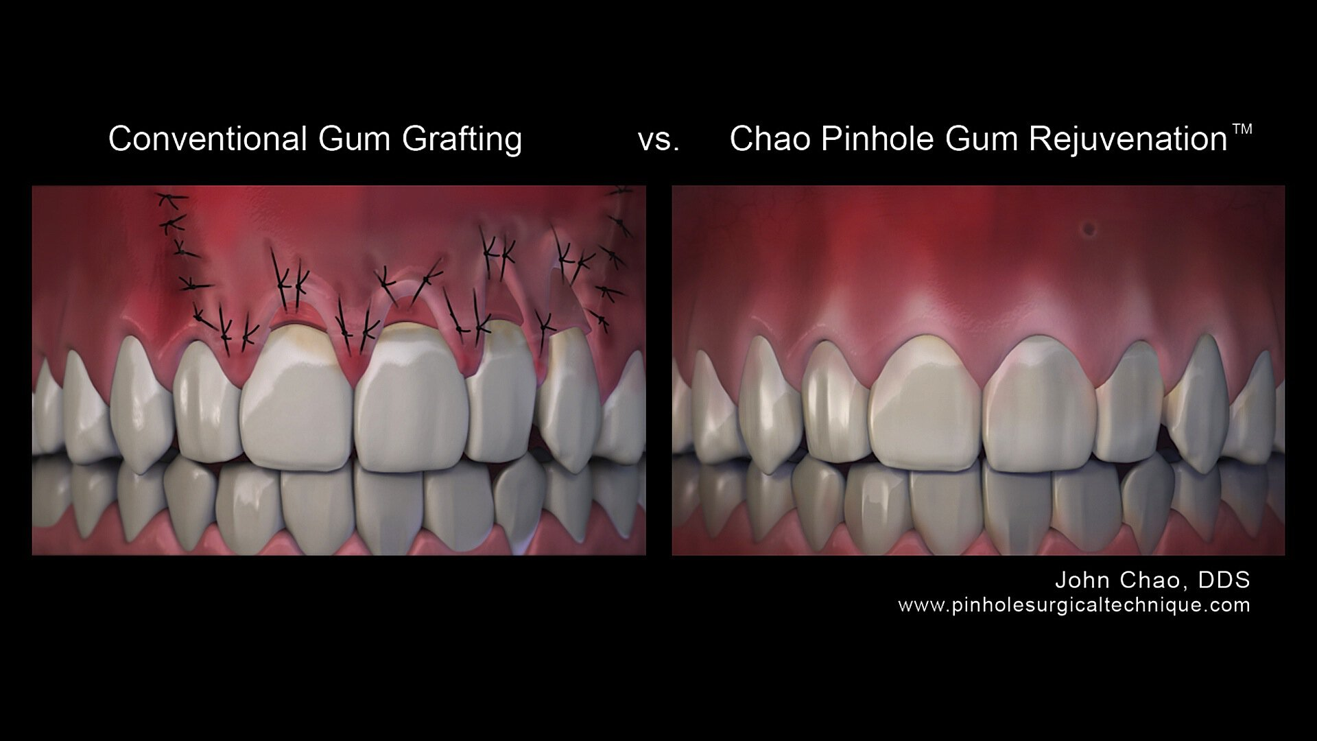 pinhole surgical technique vs conventional technique