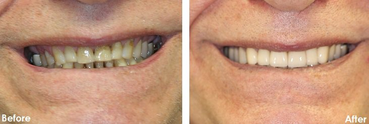 Before & After Photo of Veneers