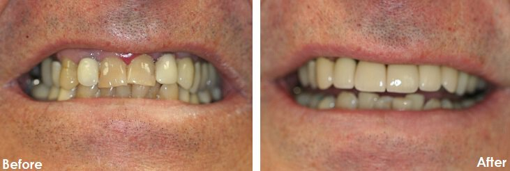 Before & After Photo of dental crowns on teeth