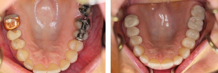 Before & After dental crowns