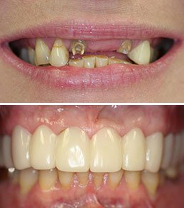 Snap-On Smile in Manalapan NJ