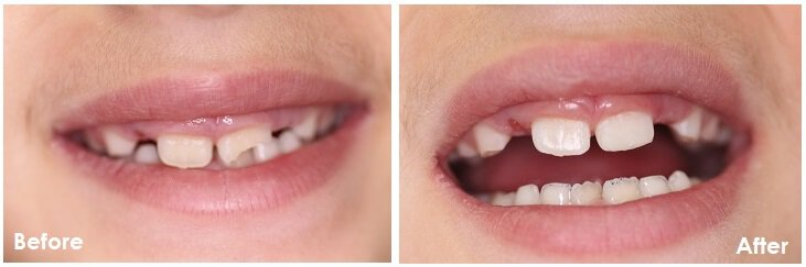 Before and After Photos of Dental Bonding - Specialized