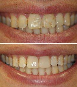 Dental Bonding Manalapan NJ | Dentist in Manalapan