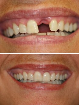 Dental Implants Old Bridge NJ