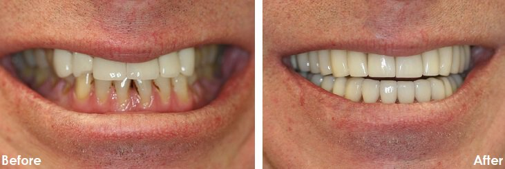 Before & After Photo of dental bonding