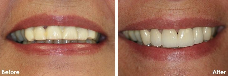 Before & After Photo of dental bonding on teeth