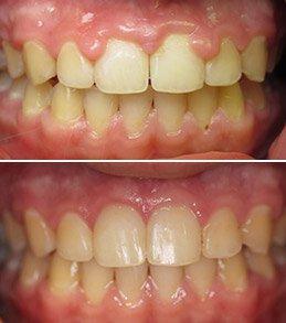 Manalapan Cosmetic Dentist