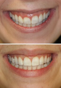 Gum Recontouring Specialist In Manalapan Nj Specialized