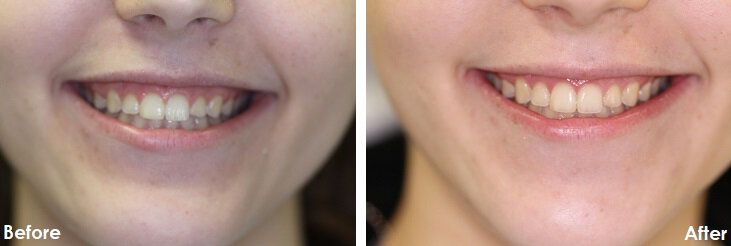 Before & After Photo of gum recontouring
