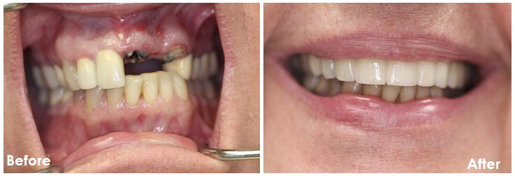 implant bridge before and after photo