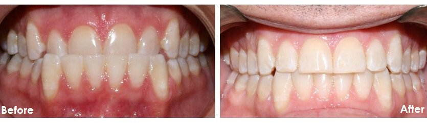 Before and After Photos of invisalign