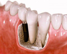 Dental Implants Manalapan NJ