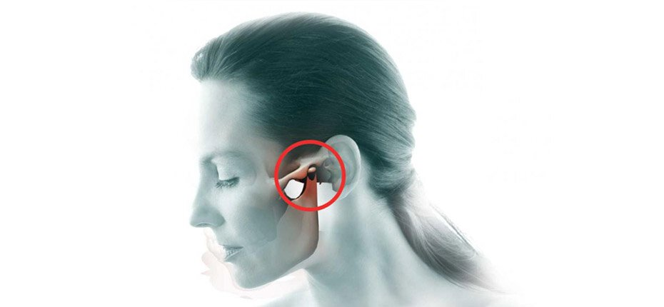 TMJ Treatment Manalapan NJ