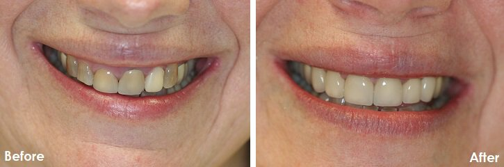 Before & After Photo of Veneers on teeth