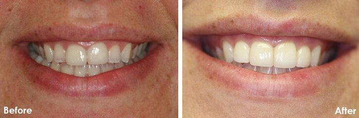Veneers Mouth Makeover