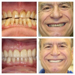 Old worn dental fillings replaced by ceramic crowns.
