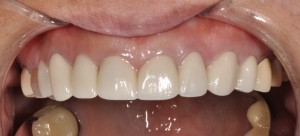 Phase II will be porcelain veneers on lower teeth.