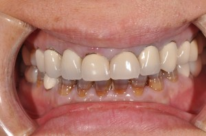 Shirley had a number of old crowns that were worn and failing around the margins at the gum line.  Solutions for Shirley was to replace failing upper front crowns as Phase I.  Phase II will be porcelain veneers on lower teeth.