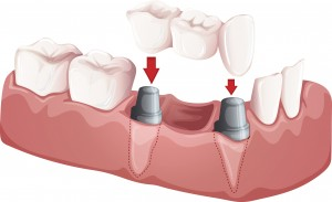 A bridge is a good option if you are not a candidate for a single tooth implant
