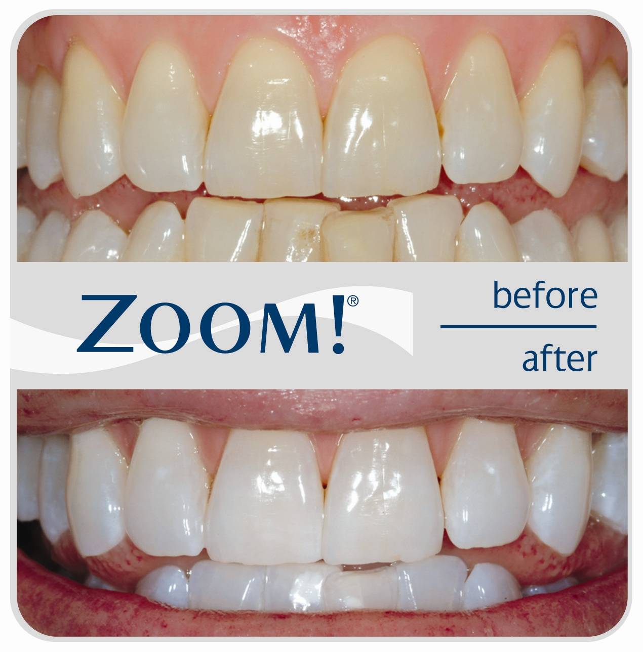 Zoom Teeth Whitening In With Your Dentist In Manalapan